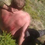 Barbat Pascani cazut de pe stanca