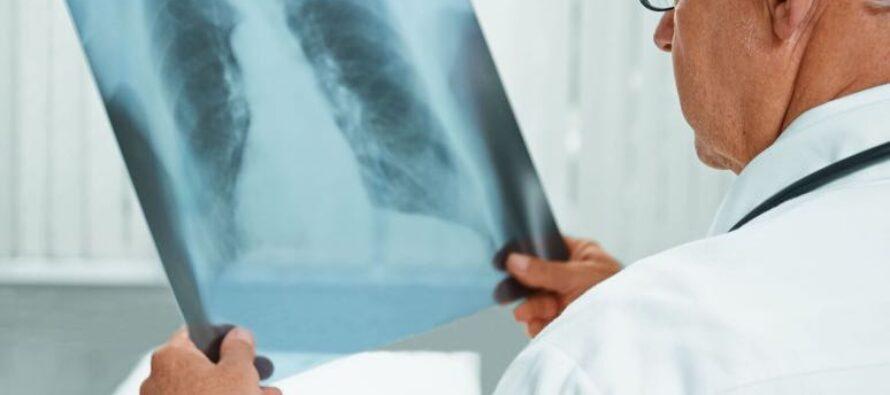 Campanie pentru depistarea precoce a tuberculozei în localitățile din Neamț